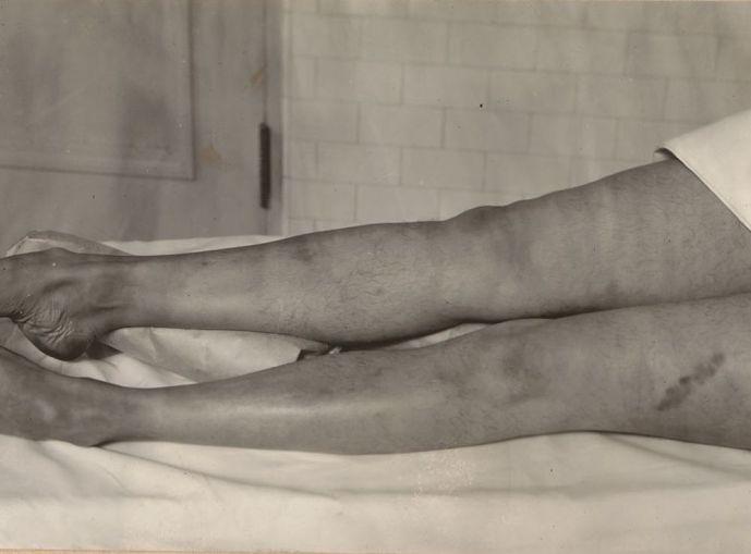 Nogi Virginii Rappe pośmierci