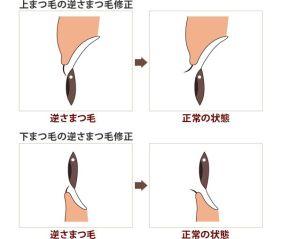 trichiasis_takasu