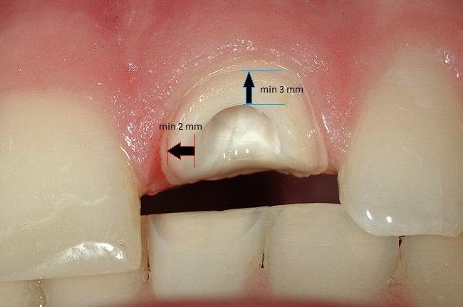 Сломался передний зуб причины травмы и методы реставрации