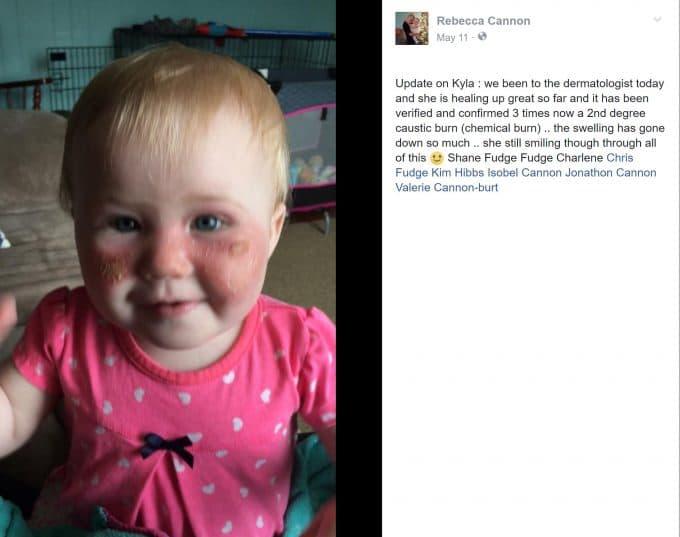 Do Not Use Aerosol Sunscreen On Children