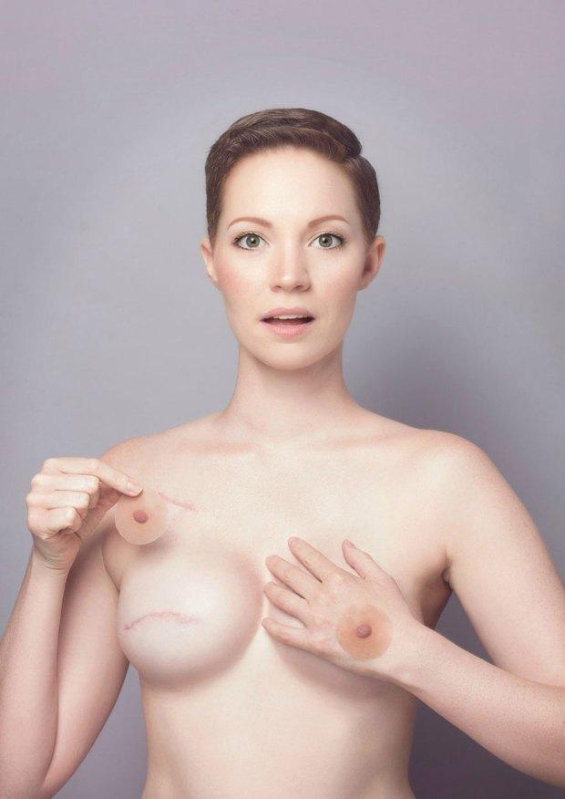 cancer-mastectomy-photos-my-breast-choice-aniela-mcguinness-6