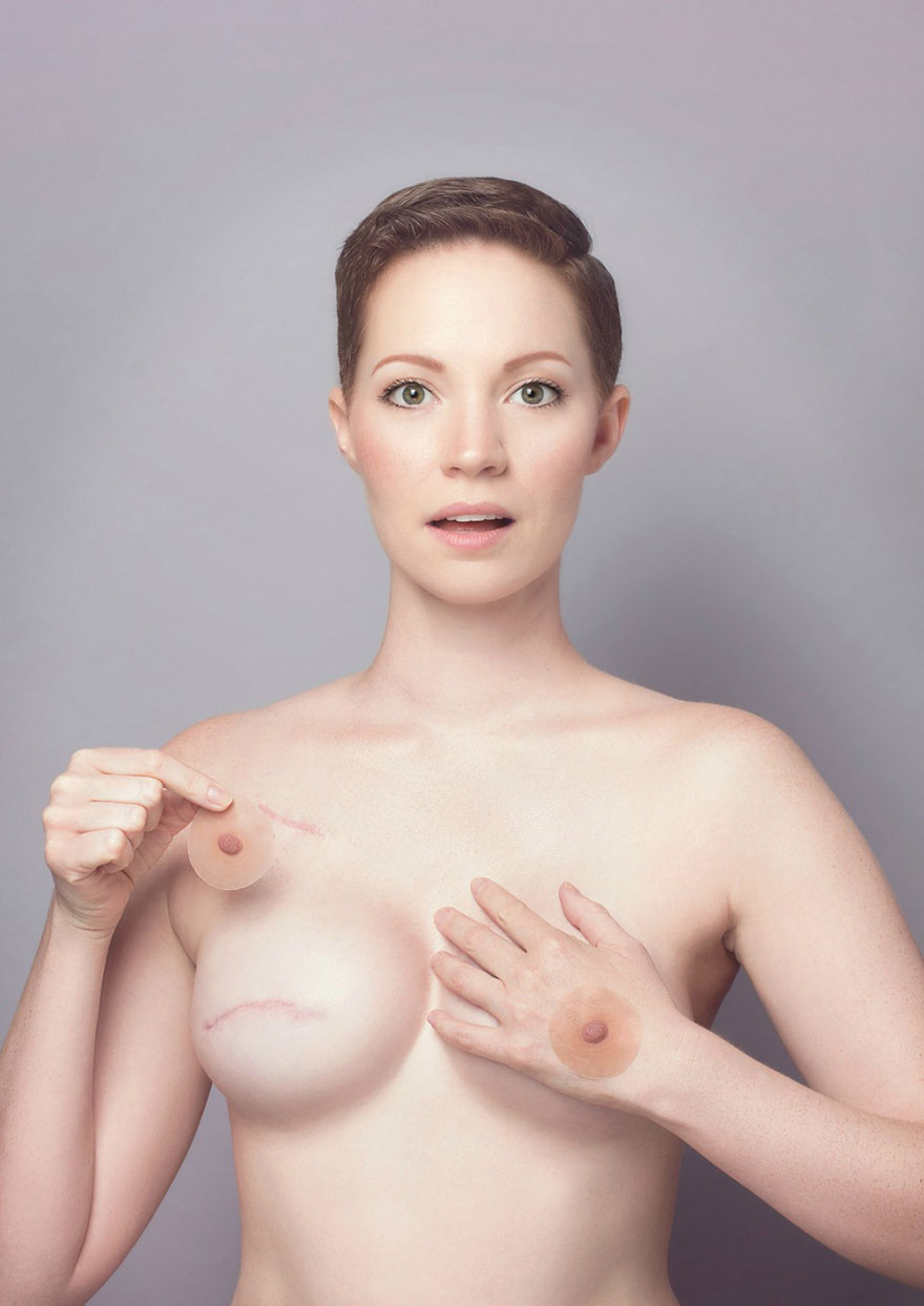 cancer-mastectomy-photos-my-breast-choice-aniela-mcguinness-6