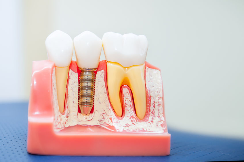 The process of getting a dental implant from Klein Dentistry in Grandville MI