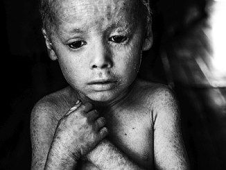 Kind mit Folgen von Pestiziden