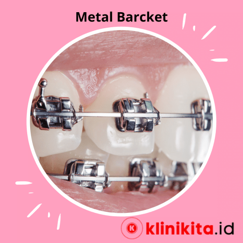 Bracket gigi metal