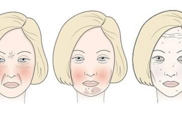Ako poškodzujú našu tvár mlieko, lepok, cukor či víno? Sledujte a porovnajte si to