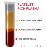 Platelet Rich Plasma – what conditions can we recommend?