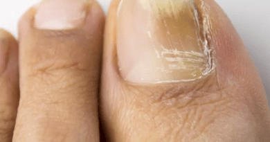 Monotherapy for toenail onychomycosis: SR & Network MA