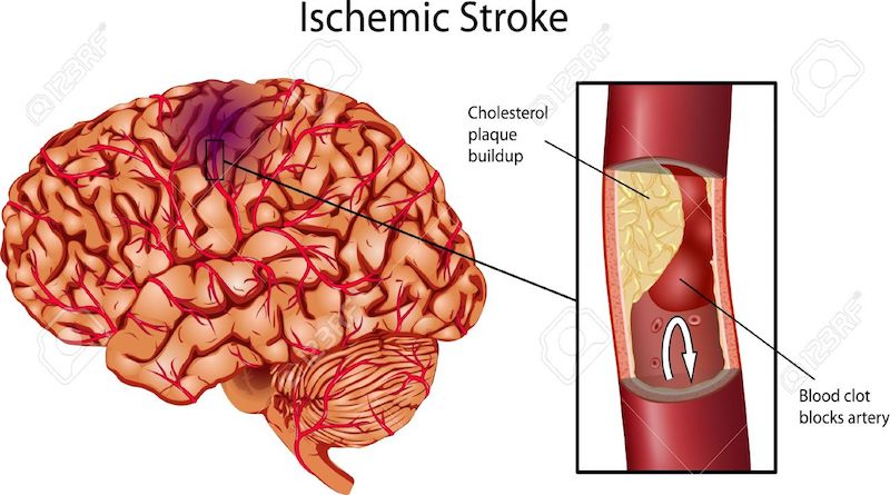 Management of acute ischemic stroke – State of Art Review