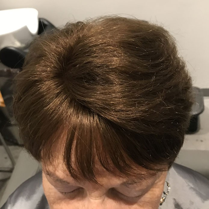 Before And After Gallery KMS Hair Systems