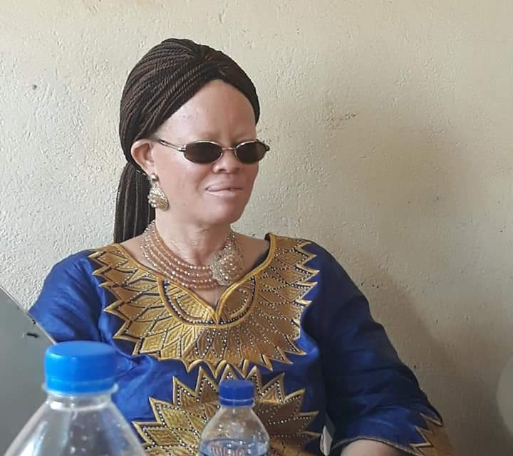 Liberia Albino Society Boss Patricia Logan calls for United Front In The Disable Community