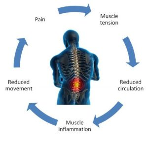 Picture of the pain cycle for muscles