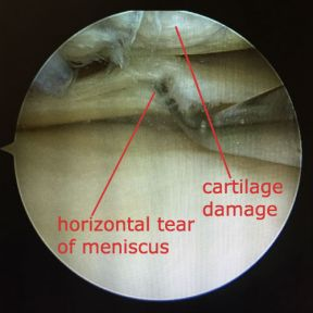 arthroscopic photograph showing horizontal cleavage tear of the meniscus and damage to the cartilage of the femur
