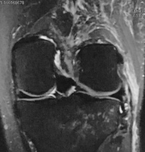 post injury MRI