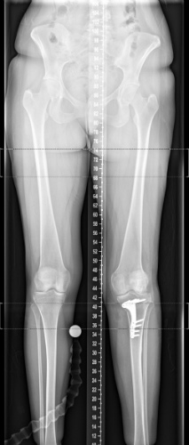 Post op tibial osteotomy