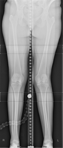 pre-op long leg x-ray