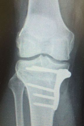 osteotomy plate