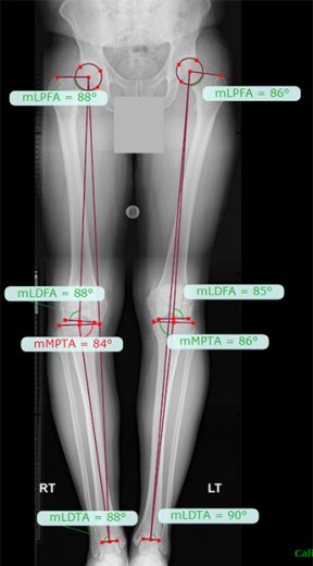 varus alignment long leg x-rays
