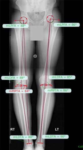 varus alignment long leg x-rays