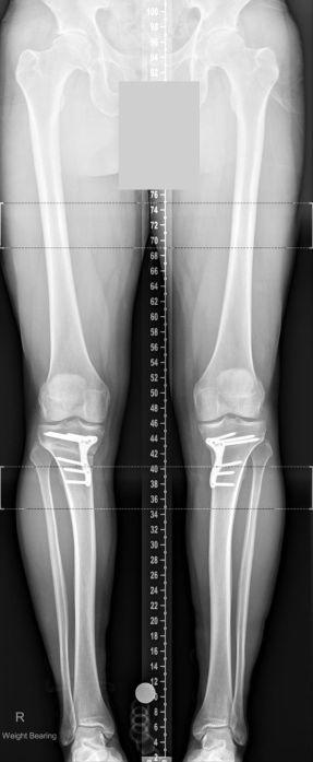 bilateral osteotomy
