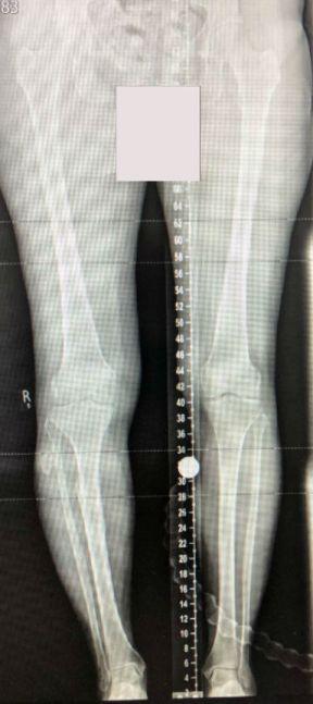 varus deformity