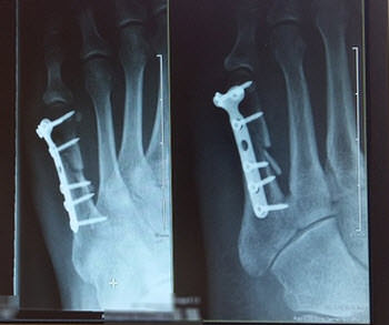 fracture xray pain suffering