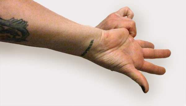 Myofascial stretch for hand soreness from knitting - pinkie stretch