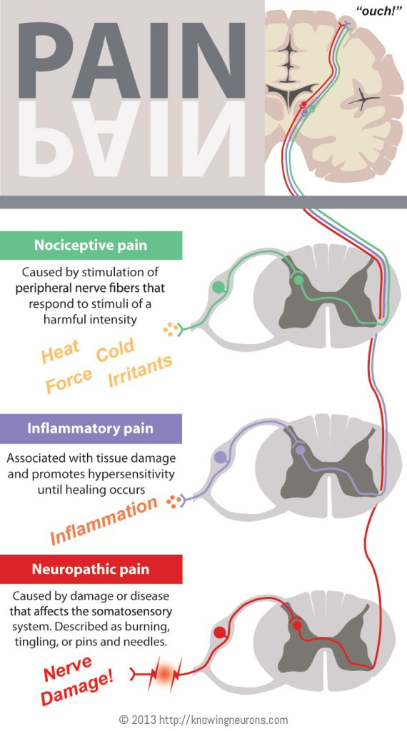 Pain Infographic by Knowing Neurons Nociceptive Inflammatory Neuropathic Dorsal Root Ganglia Spinal Cord