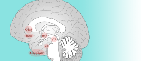 Neurobiology of Depression Knowing Neurons