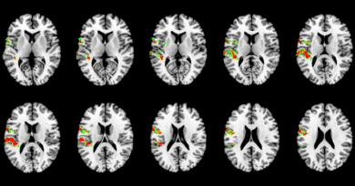 Reverse Inference by Knowing Neurons
