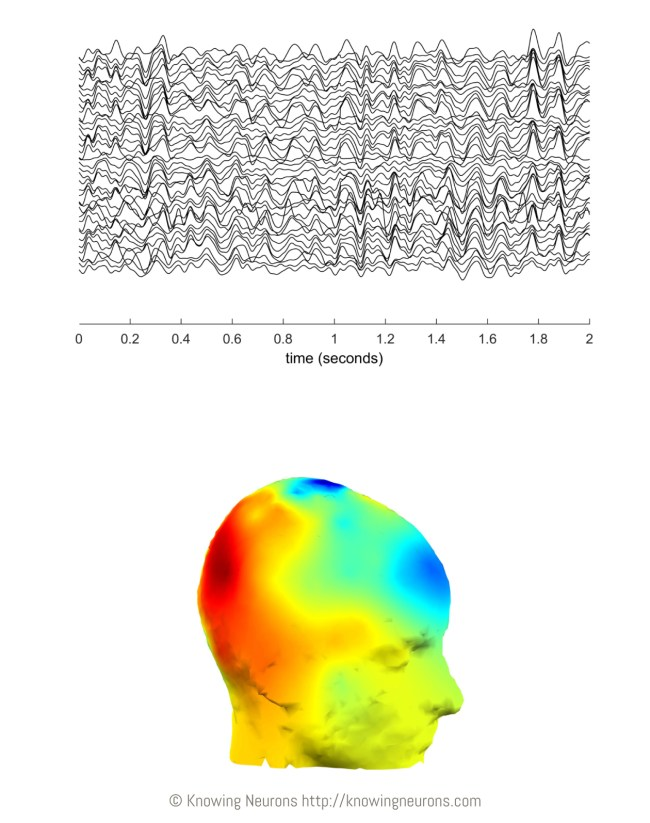 The author's alpha oscillations (top), recorded from the scalp while resting with eyes closed. The strength of Joel's alpha activity is mapped onto a generic head model (bottom), where hot colors represent strong activity and cool colors represent weak activity.