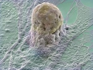 a stem cell making up its mind