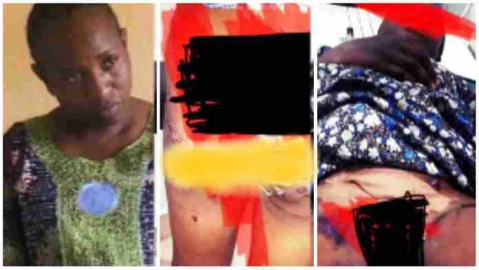 Mum Arrested For Inserting Hot Pepper Into Daughter's Toongaa - Watch N Read