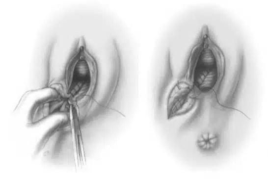 Dispareunia y episiotomía