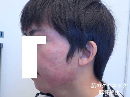 重症ニキビ治療後8