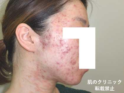 女性重症ニキビ2