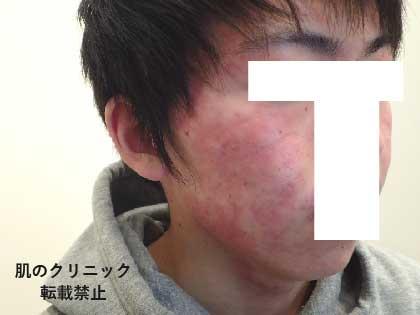 重症ニキビ治療後4