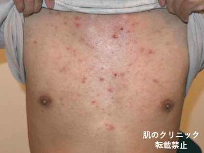 体のニキビ症例写真 肌のクリニック 高円寺院 麹町院 医療
