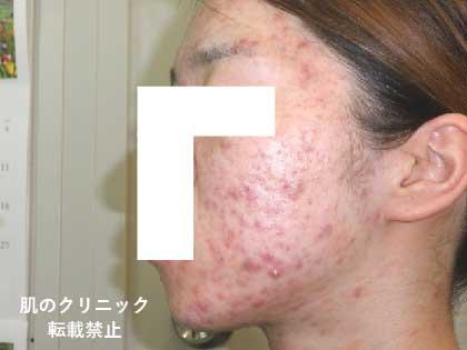 女性重症ニキビ1