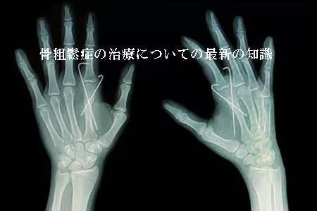 骨粗鬆症の治療についての最新の知識
