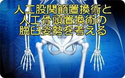 人工股関節置換術人工骨頭置換術脱臼肢位