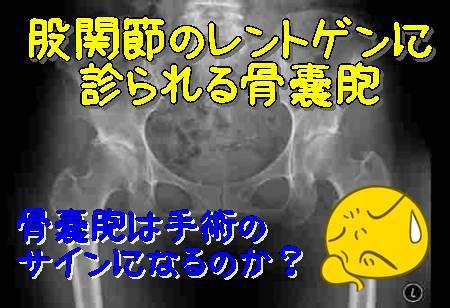 股関節 骨嚢胞(こつのうほう)4