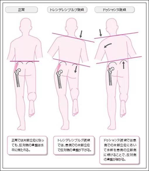 片脚立位異常姿勢1