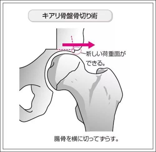 キアリ骨盤骨切り術イラスト図