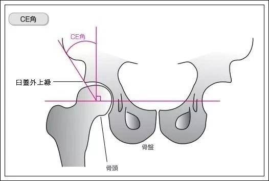大腿骨のCE角とSharp角1