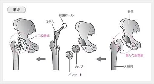 臼蓋形成不全の棚形成術、術後の問題点は?4