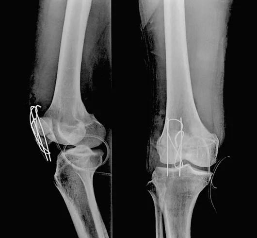 膝蓋骨骨折Tension band wiring法手術