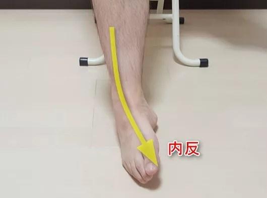 足関節内反1