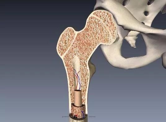 大腿骨頚部骨粗鬆症なし