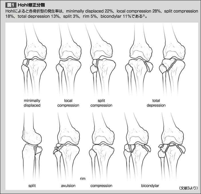 脛骨近位端骨折Hohl修正分類